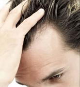 Ha csomókban hullik a haj
